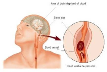 Illustration of a blocked blood vessel to the brain